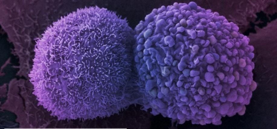 cancer-celulas